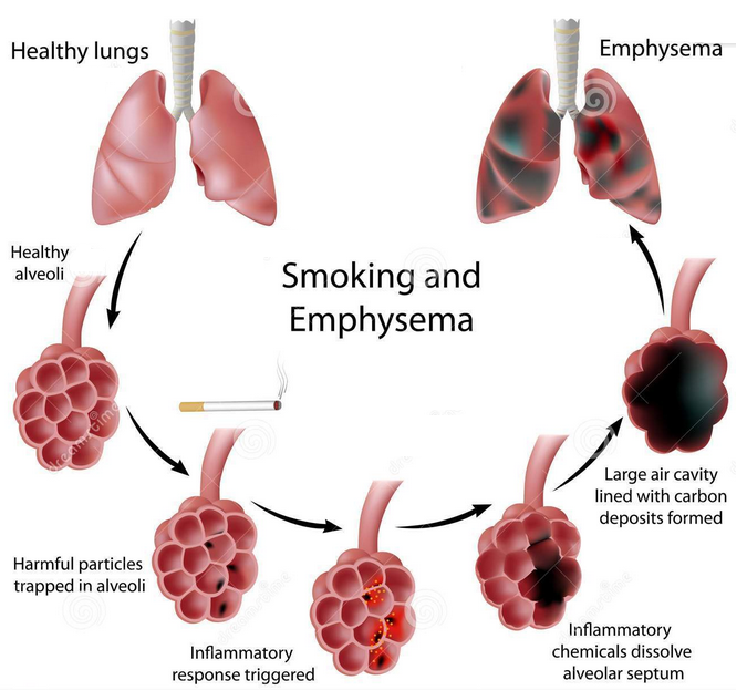 Essay on effects of smoking on gaseous exchange