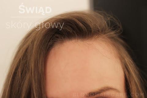 Co zrobić, gdy swędzi skóra głowy? - czytaj dalej »