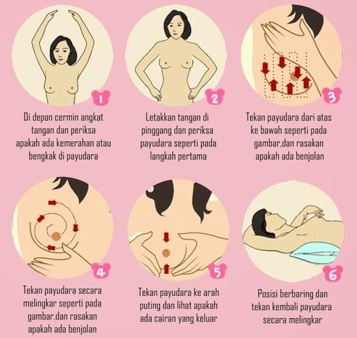 Cara Mengetahui Kanker Payudara Dengan Pemeriksaan SADARI