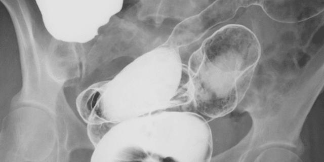 آشعة-بحقنة-باريوم-للأمعاء