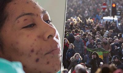 Συναγερμός για την ιλαρά στην Μ. Βρετανία – Θυμηθείτε τα συμπτώματα!