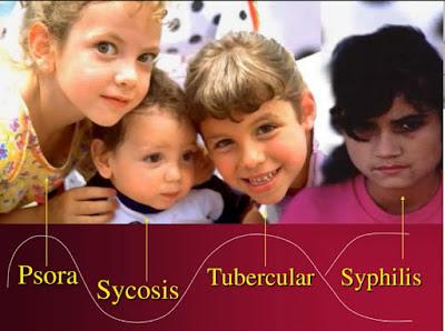 Miasms Psora Sycosis Syphilis Tubercular সোরা, সিফিলিস, সাইকোসিস ও টিউবারকুলার মায়াজন