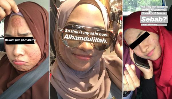 'Bertahun kulit muka teruk camni sebab salah skincare, tapi sekarang Alhamdulillah'