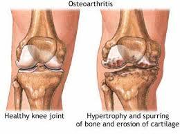 Obat Pengapuran Tulang dan Sendi