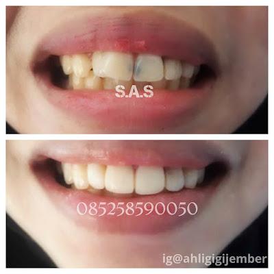 Foto hasil perbaikan merapikan veneer gigi hitam berlubang dan miring