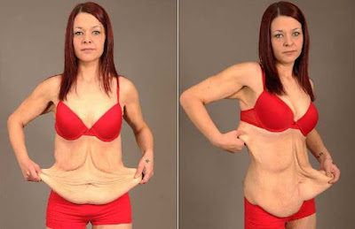loose-skin-after-weight-loss