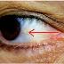 Seus olhos podem revelar se você está prestes a ter um derrame, saiba como
