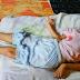 Gejala Dini Penyakit Stroke Yang Menyebabkan Lumpuh