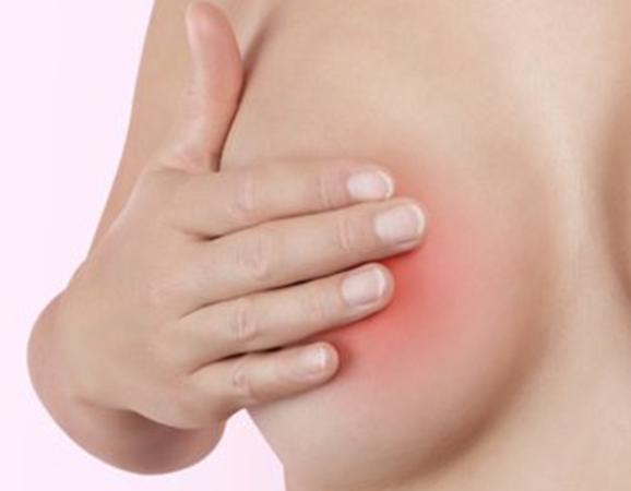 La enfermedad de Paget es un tipo de cáncer que empieza en el pezón