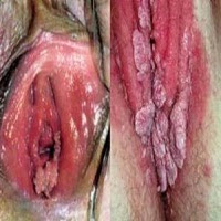 Obat Benjolan Kutil Dikelamin Wanita