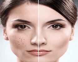 12 Tips Sederhana Untuk Menghilangkan Flek Hitam di Wajah Tanpa Efek Samping