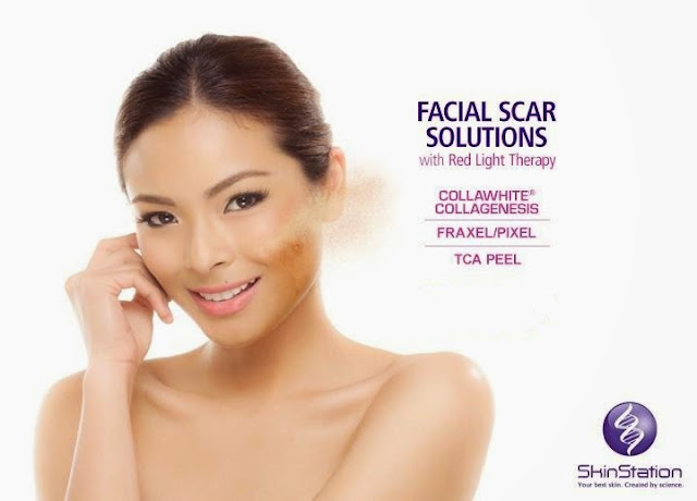 SkinStation for Facial Scar solutions