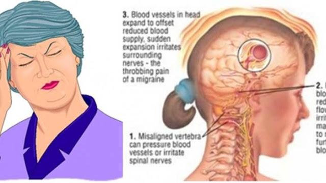 Cara Sederhana ini Bisa Meringankan Sakit Kepala Anda dalam Waktu 3 Menit loh! WAJIB TAU nih!