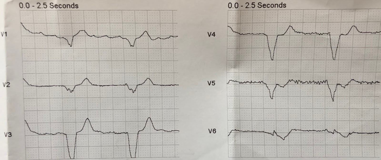 Dr  Smith's ECG Blog: Anterior MI in paced rhythm, dismissed by