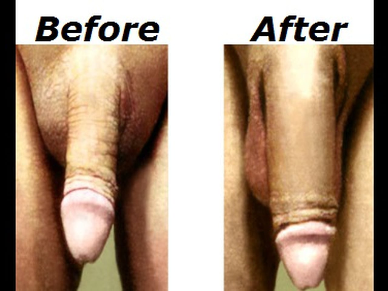 A pain free and safe alternative to penis enlargement surgery