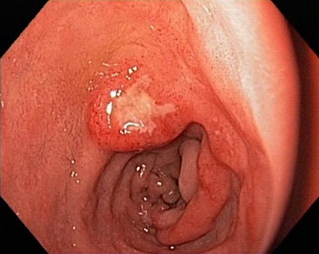 Những hiểu biết về bệnh viêm dạ dày ruột cấp