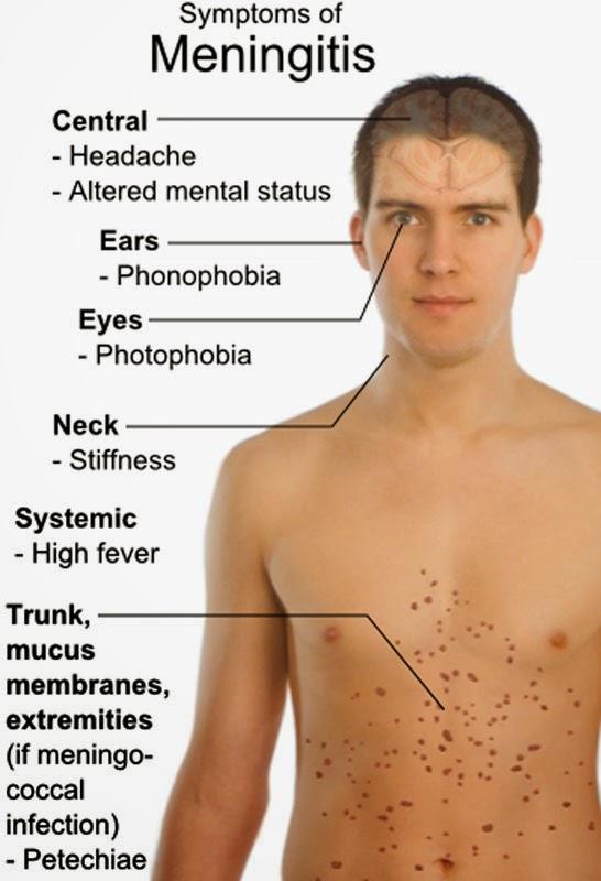 Penyebab dan gejala meningitis