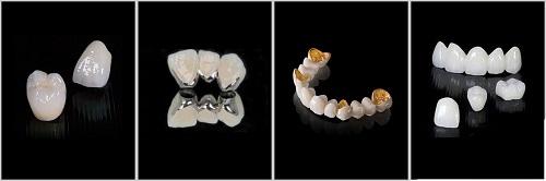 răng sứ sử dụng được bao lâu -9