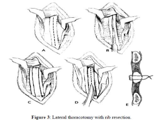 Teknik Operasi Thoracotomy pada Hewan (Bedah Thoraks)