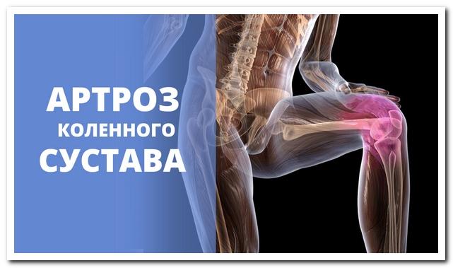 Лечение артроза коленного сустава в николаеве рецепт для суставов уксус сырое яйцо масло