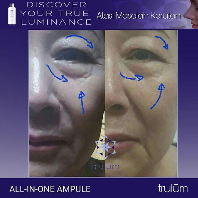 Jual Serum Penghilang Jerawat Trulum Skincare Pedes Karawang