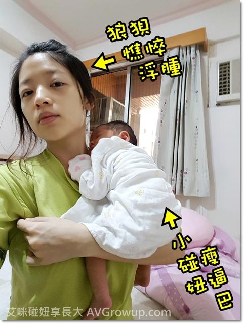 寶寶吐奶嚴重-寶寶脫水-Pyloric-narrow