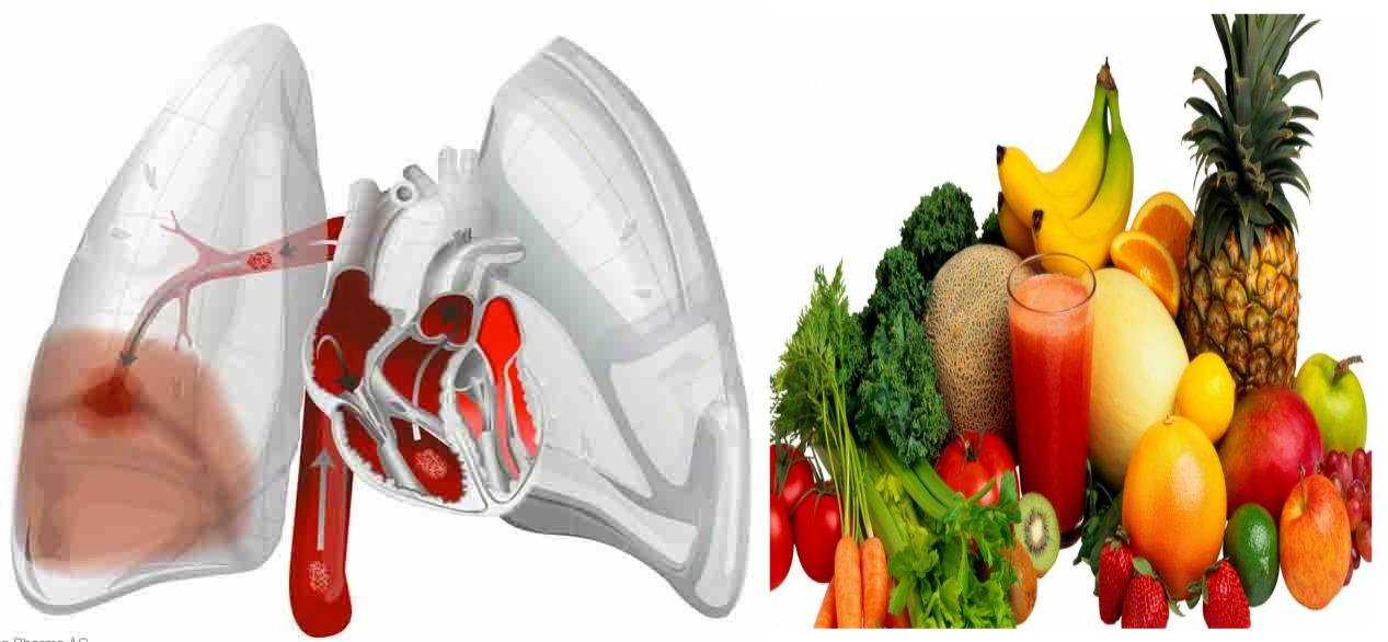 Sumber Makanan Kesehatan Penderita Emboli Paru