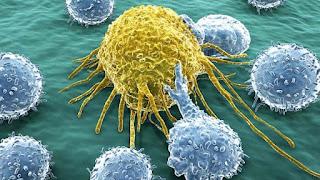 Καρκινικά κύτταρα με κύτταρα του ανοσοποιητικού συστήματος του σώματος.