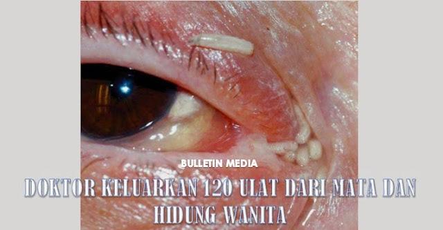 Doktor Keluarkan 120 Ulat Dari Mata & Hidung Wanita