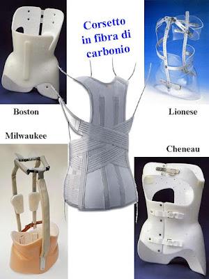Silvana Calabrese corset scoliosis, kyphosis, lordosis Loving San Francisco