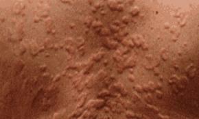 Chronic hives (urticaria) | Diseases