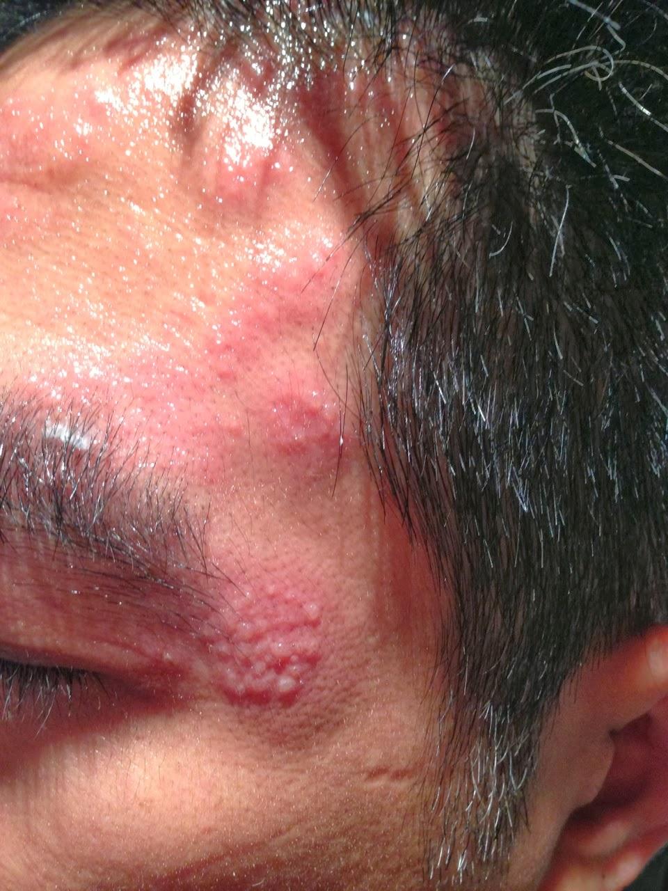 心之谷: 不可輕忽的水泡--再談帶狀皰疹