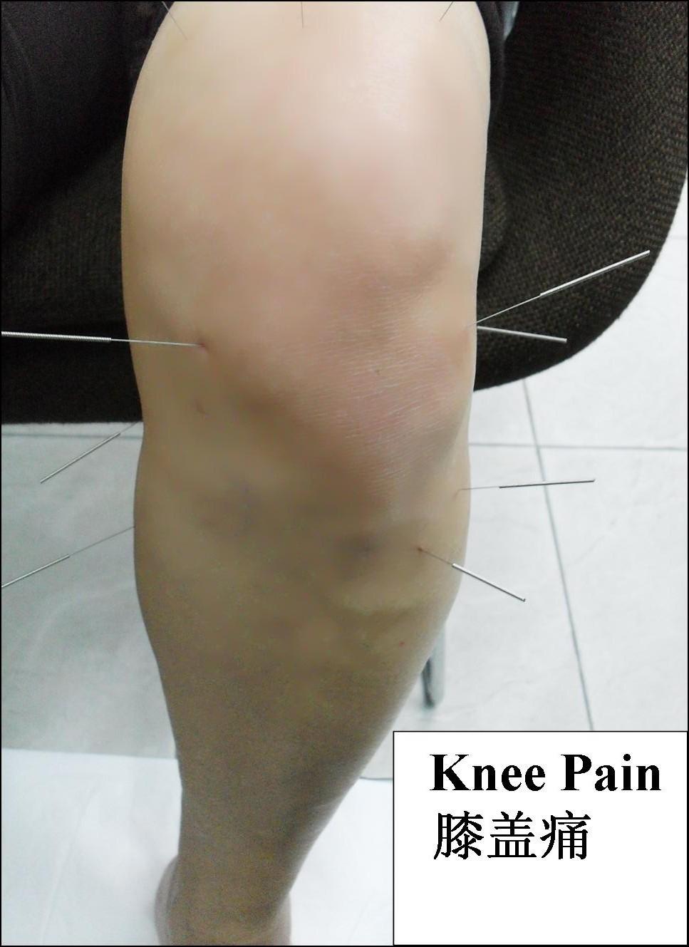 Tcm News Back Pain Neck Pain Knee Pain Amp Headache