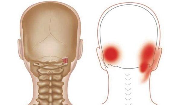 Tension Headache Or Migraine