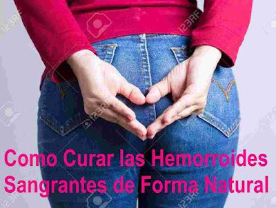 Como-Curar-las-Hemorroides-Sangrantes-de-Forma-Natural