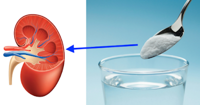 Repair Kidneys Naturally And With 1 Ingredient