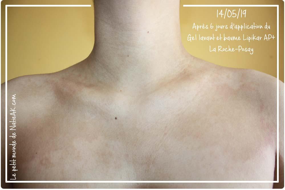 eczéma remède miracle : avis gamme lipikar