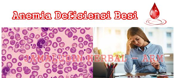 http://arumherbal30.blogspot.co.id/2018/01/cara-mengobati-anemia-defisiensi-besi.html