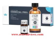 tca chemical peel for acne scars reviews