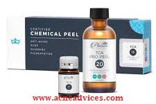 Trichloroacetic Acid (TCA) Peel for Acne Scars – Is It Really Effective?