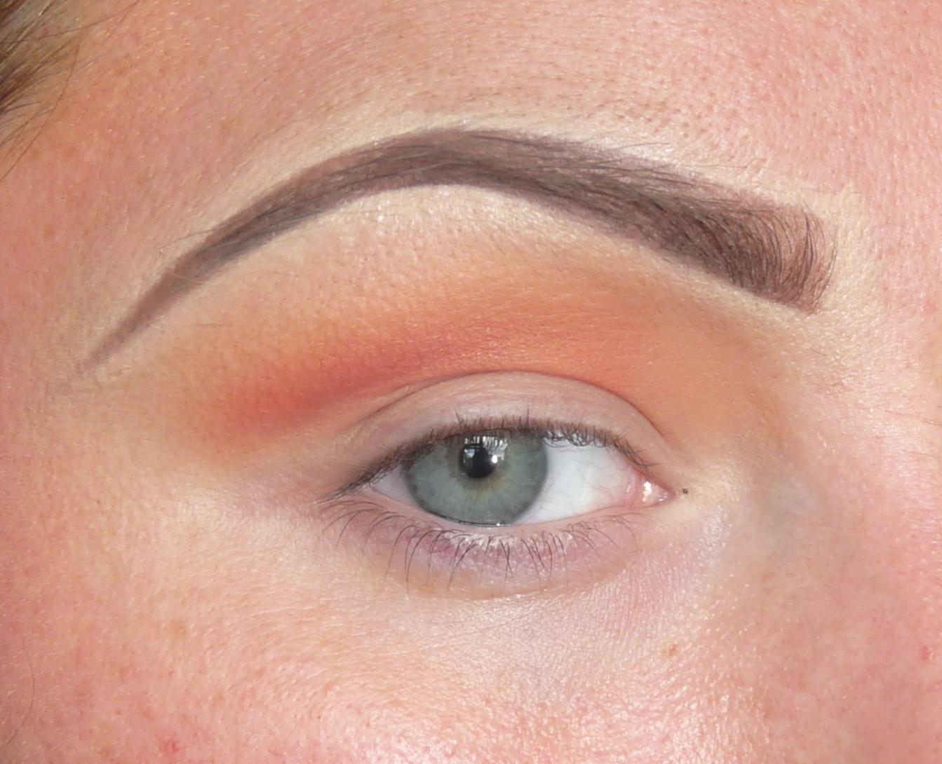 White cyst on inside eyelid