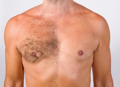 How to remove chest hair permanently