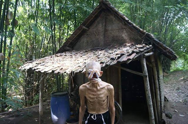 BANTU SHARE TEMAN TEMAN KAKEK INI MEMBUTUHKAN BANTU,AN DARI KITA