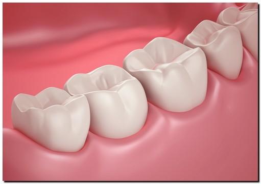 apakah gigi berlubang atau ompong bisa mendaftar akpol