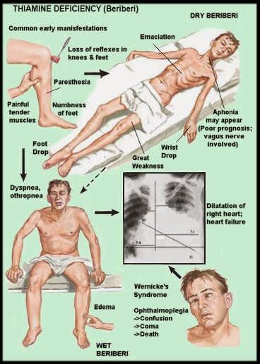 Beribéri (Doença de Origem Nutricional)