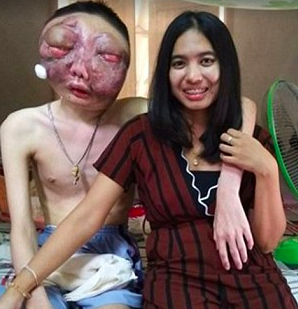 Wajah Hancur Karena Tumor, Perlakuan Kekasihnya Ini Bisa Jadi Contoh Pasangan yang Sabar