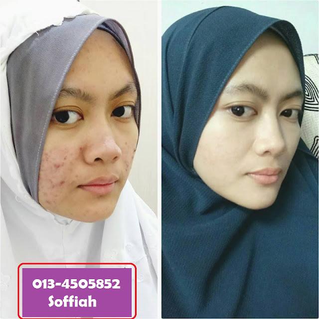 produk skincare natural bebas bahan kimia bahaya