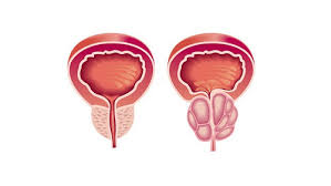 Kanser Prostat Peringkat 4