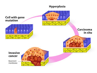 http://www.zonazon.com/2017/12/about-mesothelioma-and-carcinoma.html