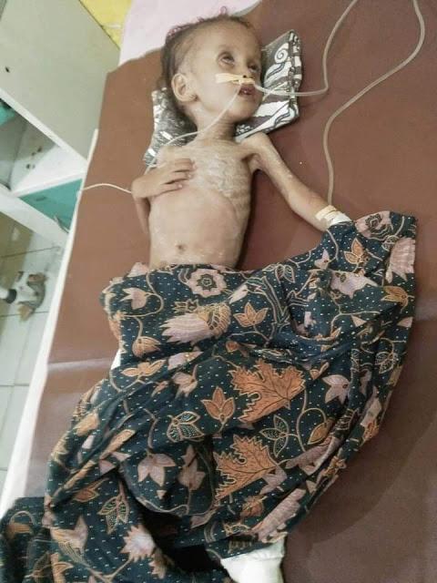 Fitri Fadillah bocah penderita gizi buruk di Tanjungbalai yang meninggal saat berada di RSU T Mansyur Tanjungbalai.